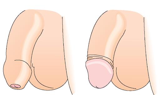 cắt da bao quy đầu