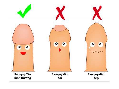 hỏi đáp về cắt bao quy đầu