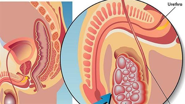 cách chữa đau tinh hoàn