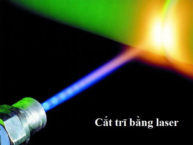 Cắt trĩ bằng laser