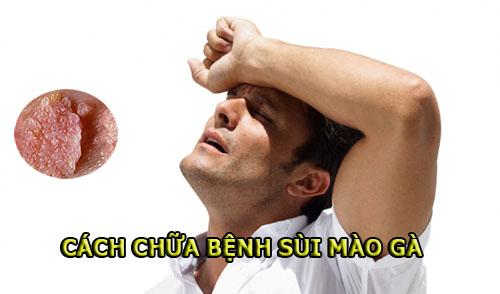 cách chữa bệnh sùi mào gà