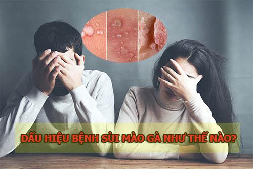 Dấu hiệu bệnh sùi mào gà