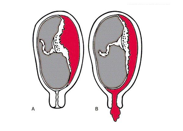 Hút thai có ảnh hưởng gì không