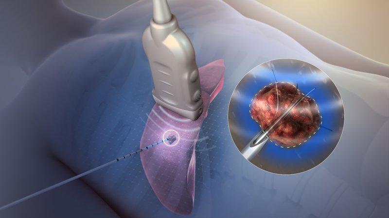áp lạnh viêm lộ tuyến cổ tử cung