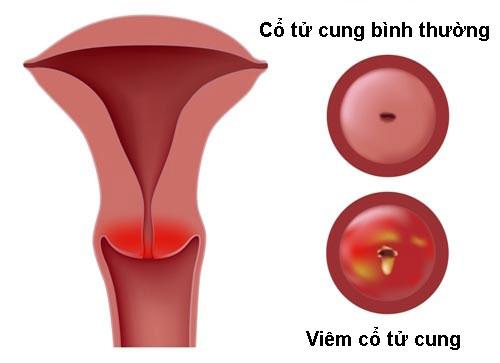 cách chữa viêm cổ tử cung