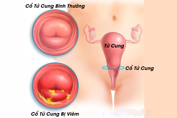 viêm cổ tử cung nhẹ